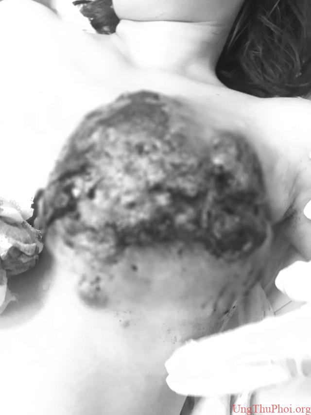 Ngực sùi to như súp lơ vì đắp thuốc lá chữa ung thư - 1
