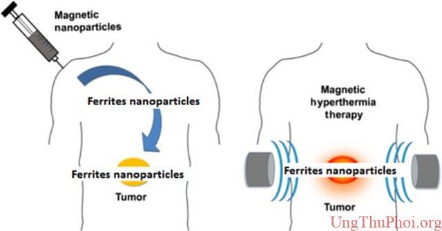 Những phương pháp tiên tiến có thể giúp con người chiến thắng ung thư - 1