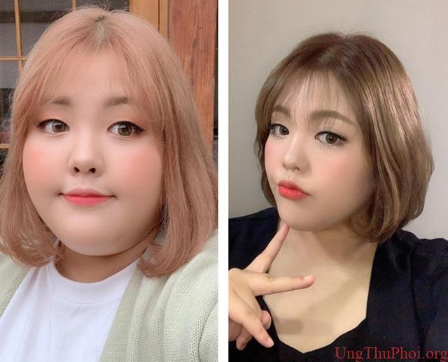 Căn bệnh ung thư phát hiện sau khi giảm cân của thánh ăn Hàn Quốc - 1