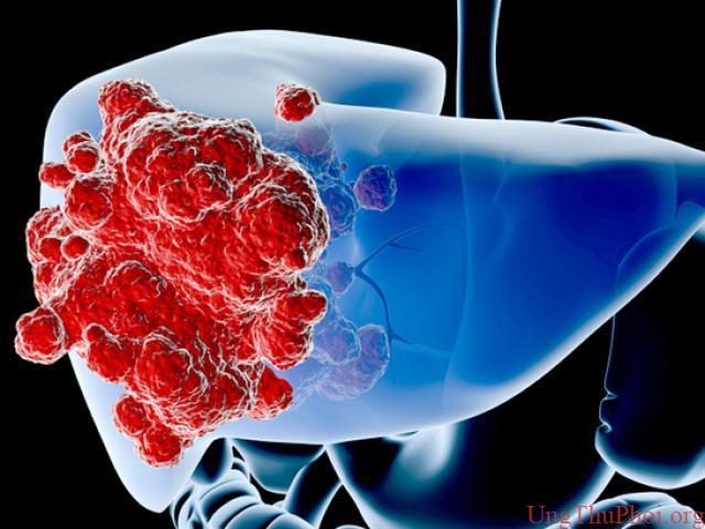 Đừng bỏ qua dấu hiệu của 5 bệnh ung thư thường gặp này - 1