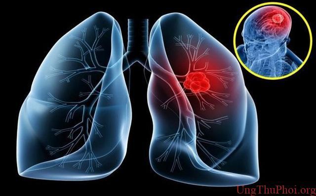 Đừng bỏ qua dấu hiệu của 5 bệnh ung thư thường gặp này - 2