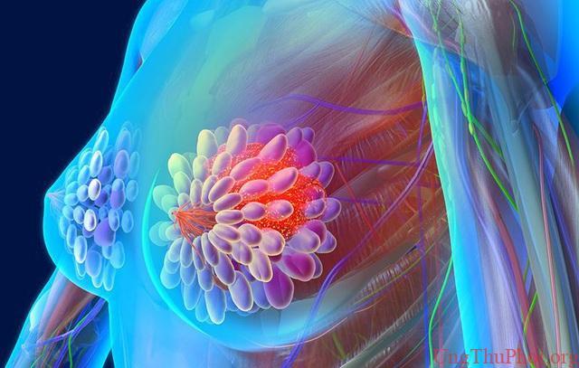 Đừng bỏ qua dấu hiệu của 5 bệnh ung thư thường gặp này - 4