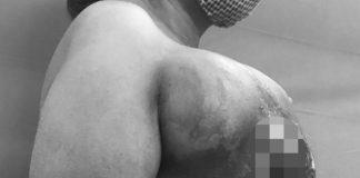 Bỏ dở điều trị ung thư vú, người phụ nữ mọc khối u mới to như quả bưởi - 1