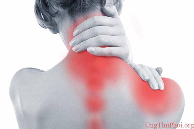 Thường xuyên đau nhức vai phải, người phụ nữ bất ngờ nhận kết quả ung thư - 1