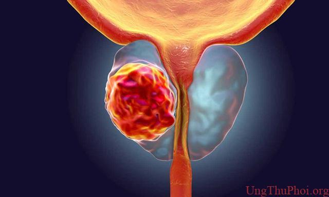 Loại thuốc mới tiếp thêm hy vọng cho bệnh nhân ung thư tuyến tiền liệt - 1