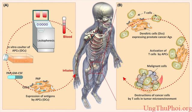 Những phương pháp tiên tiến có thể giúp con người chiến thắng ung thư - 5