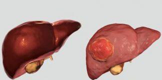 Ung thư sát thủ với nam giới bắt nguồn từ bệnh lý mãn tính - 1