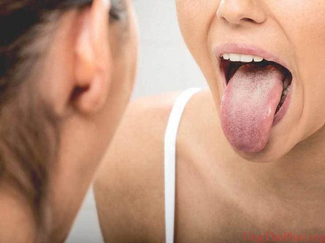 Thói quen xấu gây ung thư lưỡi nhiều người Việt đang mắc phải - 1