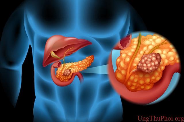 Ung thư tụy khó phát hiện sớm, tỷ lệ tử vong cao - 1