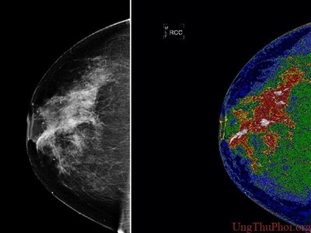 Phát hiện cách ngăn chặn sự phát triển loại ung thư vú phổ biến nhất - 1