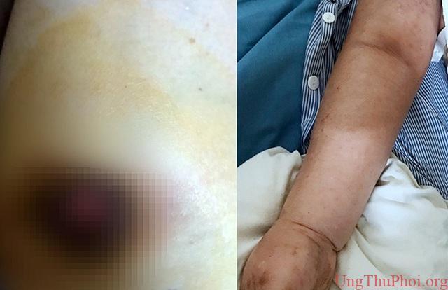 Vỡ loét đầu vú vì tự ý đắp lá chữa ung thư - 1