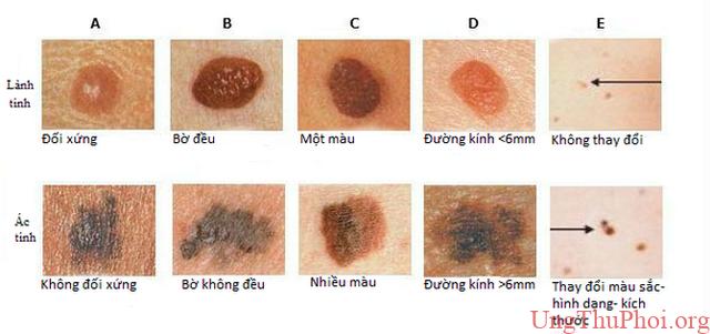 Dấu hiệu nhận biết sớm nốt ruồi ác tính - 1