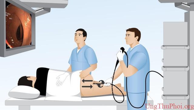 Những phương pháp tầm soát ung thư giúp bạn chủ động trước bệnh tật - 6