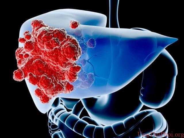 Bạn có nguy cơ mắc loại ung thư nào cao nhất? - 5