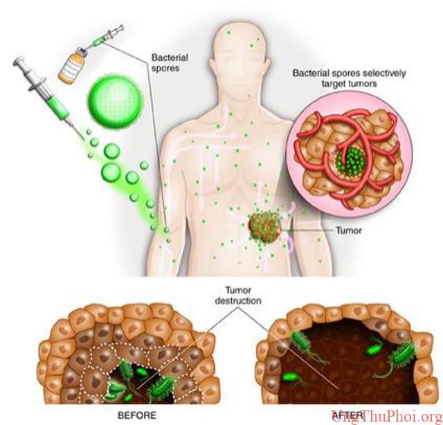 Điều trị ung thư bằng cách cho vi khuẩn ăn sạch lõi của khối u - 2