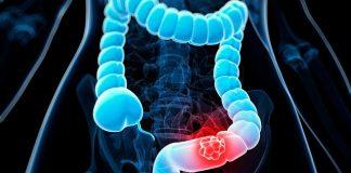 Phát hiện ung thư giai đoạn cuối chỉ sau 2 tháng bị táo bón, sụt cân - 1