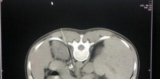 Diệt đám rối thần kinh tạng: Chấm dứt đau đớn cho bệnh nhân ung thư - 1